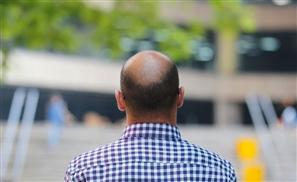 DHI: The Revolutionary Treatment Restoring Egypt's Hair