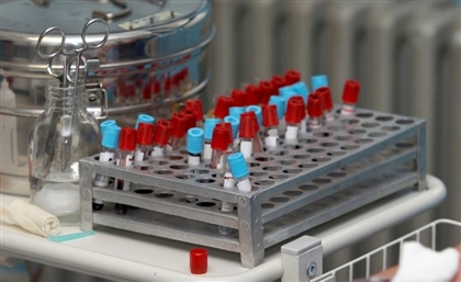 Egypt's Central Laboratory Included Among EU's Reference Labs